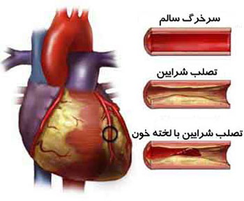 با علائم و نشانه های بیماریهای قلبی آشنا شویم